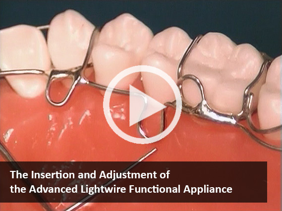 The Insertion and Adjustment of Advanced Lightwire Appliance (Video)